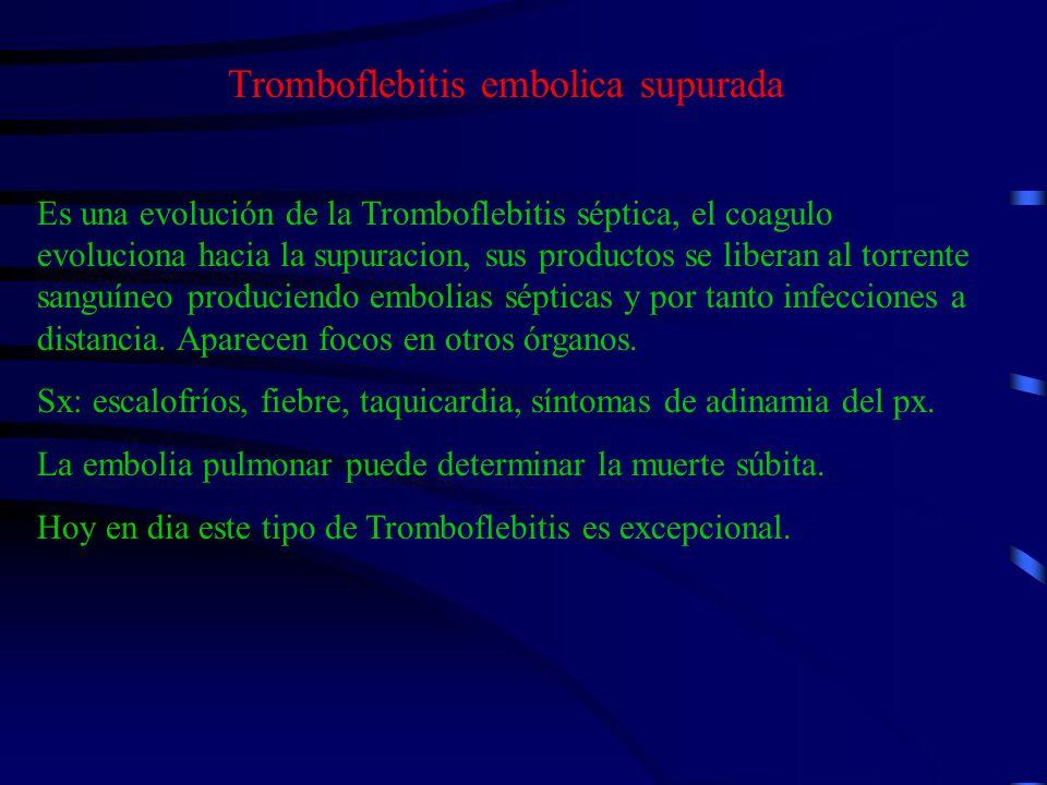 Tromboflebitis embolica supurada