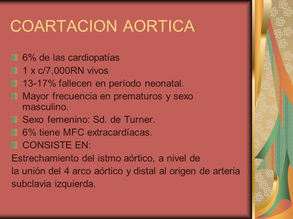 COARTACION AORTICA 6% de las cardiopatías 1 x c/7,000RN vivos