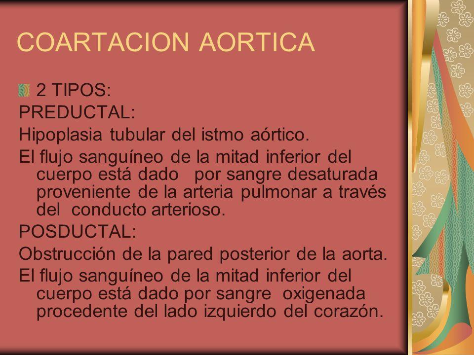 COARTACION AORTICA 2 TIPOS: PREDUCTAL: