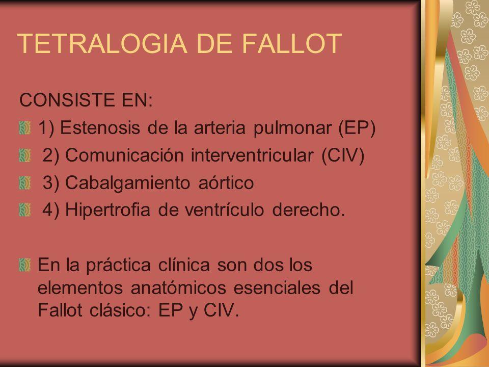 TETRALOGIA DE FALLOT CONSISTE EN:
