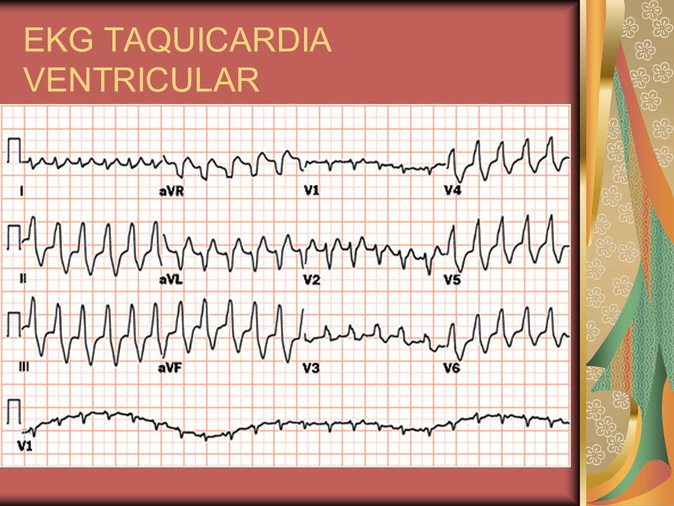 EKG TAQUICARDIA VENTRICULAR