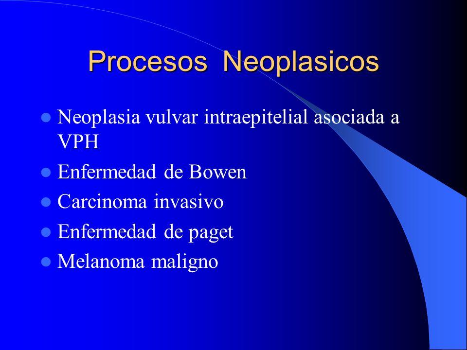 Procesos Neoplasicos Neoplasia vulvar intraepitelial asociada a VPH