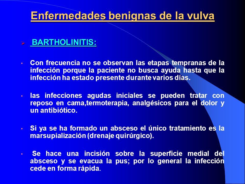 Enfermedades benignas de la vulva
