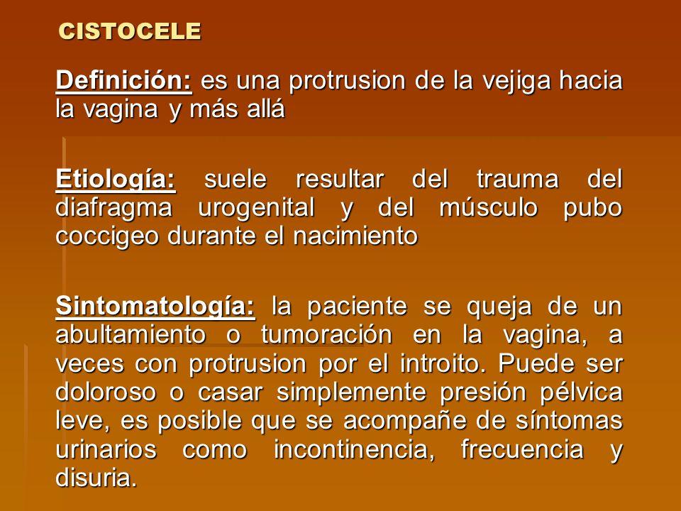 CISTOCELE Definición: es una protrusion de la vejiga hacia la vagina y más allá.