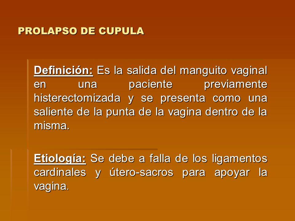 PROLAPSO DE CUPULA