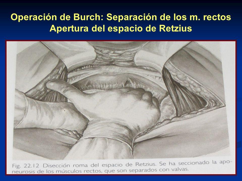 Operación de Burch: Separación de los m