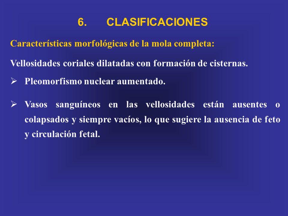 6. CLASIFICACIONES Características morfológicas de la mola completa: