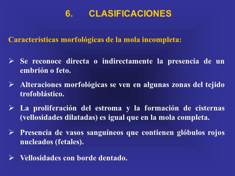 6. CLASIFICACIONES Características morfológicas de la mola incompleta: