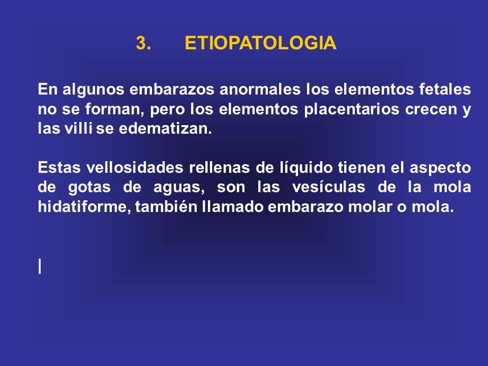 3. ETIOPATOLOGIA En algunos embarazos anormales los elementos fetales no se forman, pero los elementos placentarios crecen y las villi se edematizan.