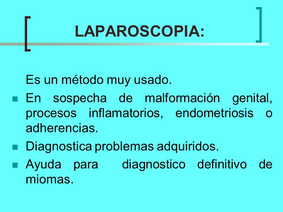 LAPAROSCOPIA: Es un método muy usado.