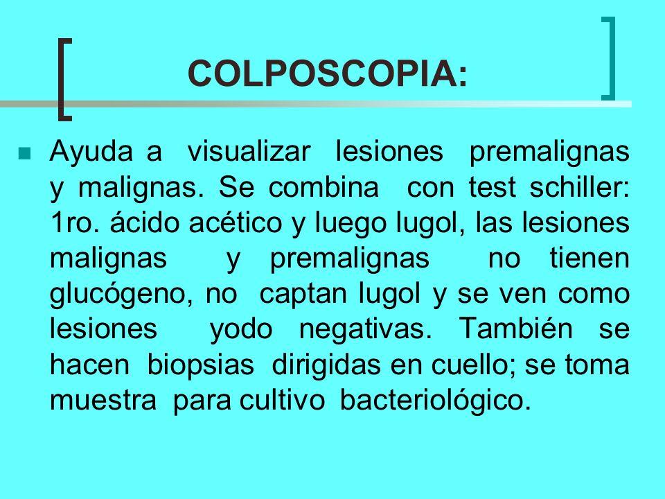 COLPOSCOPIA: