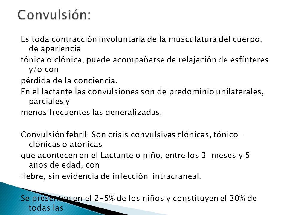 Convulsión: