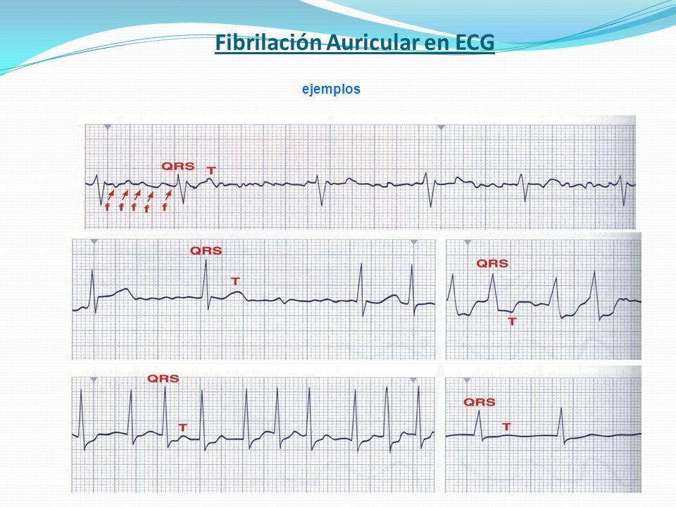 Fibrilación Auricular en ECG