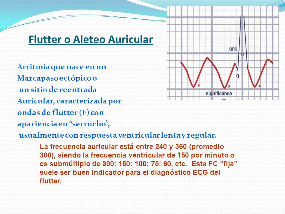 Flutter o Aleteo Auricular