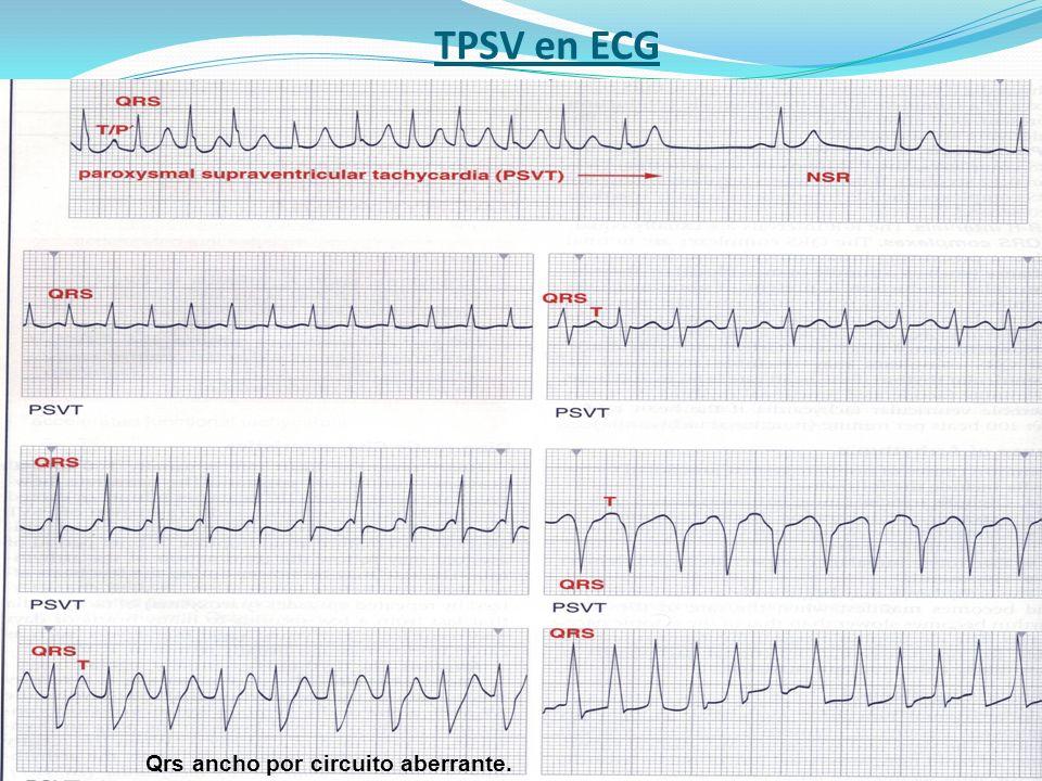 TPSV en ECG Qrs ancho por circuito aberrante.