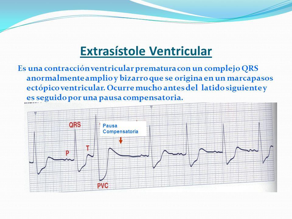 Extrasístole Ventricular