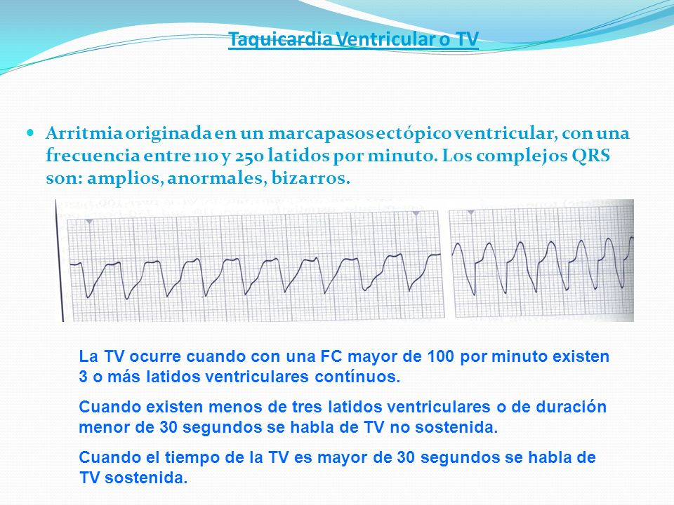 Taquicardia Ventricular o TV