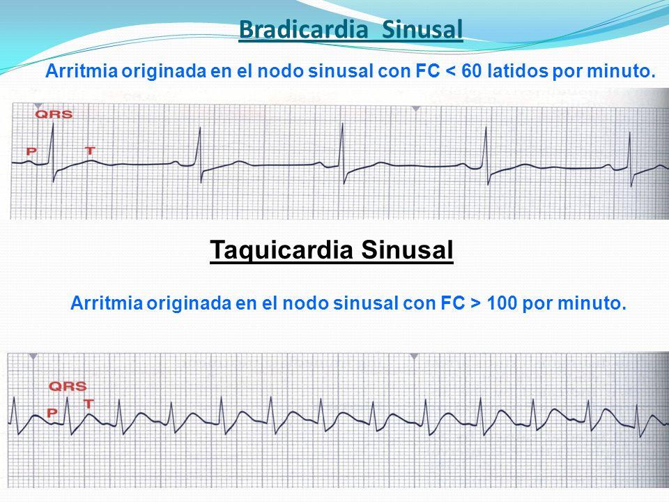 Bradicardia Sinusal Taquicardia Sinusal