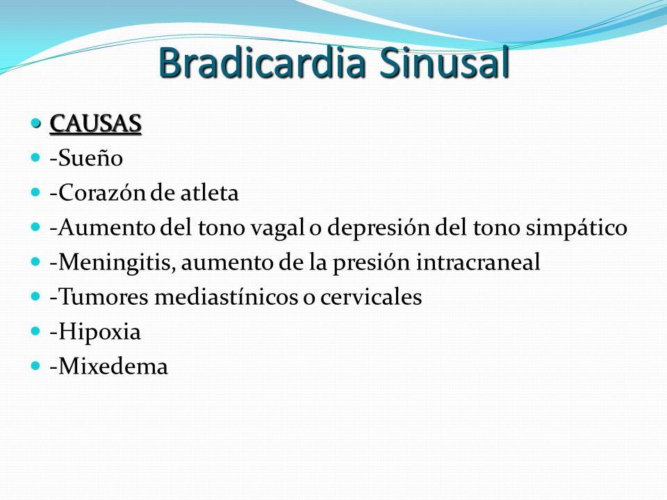 Bradicardia Sinusal CAUSAS -Sueño -Corazón de atleta