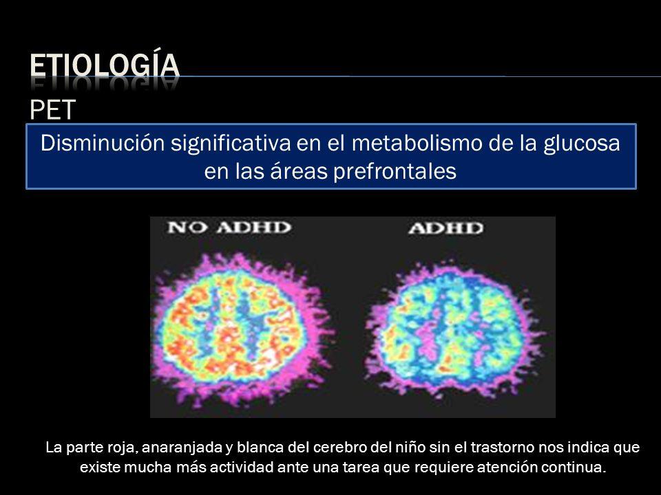 etiología PET. Disminución significativa en el metabolismo de la glucosa en las áreas prefrontales.
