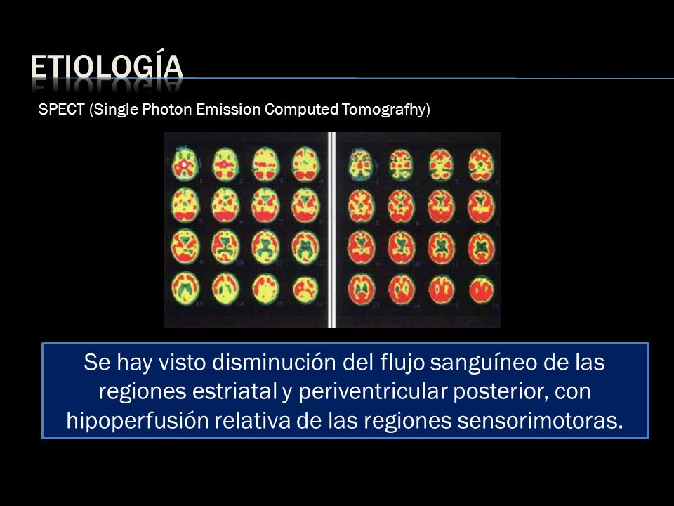 etiologíaSPECT (Single Photon Emission Computed Tomografhy)