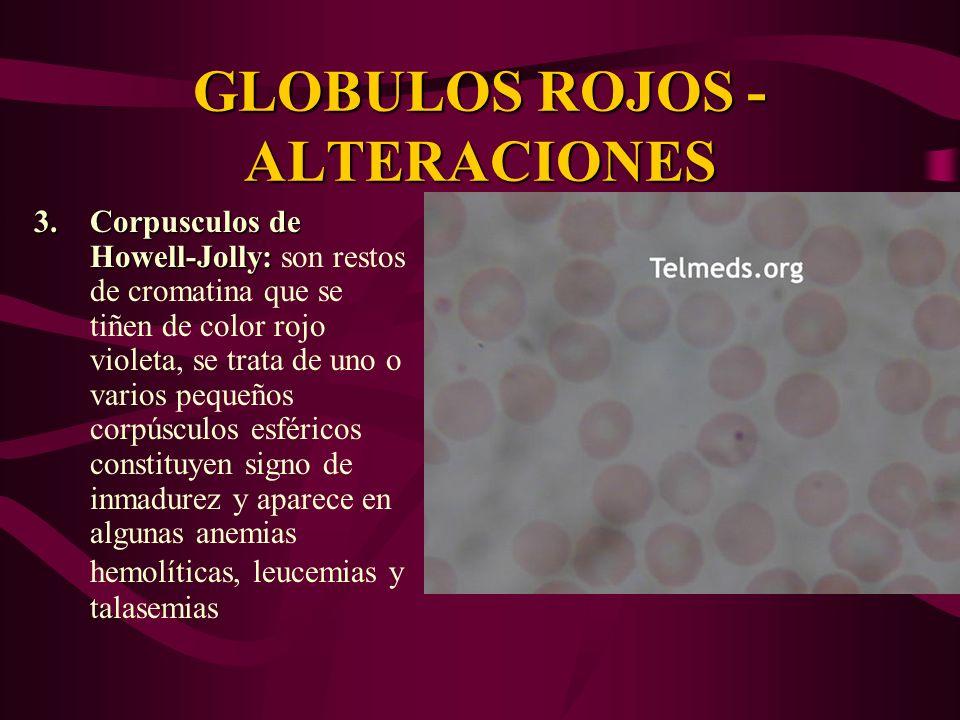 GLOBULOS ROJOS -ALTERACIONES
