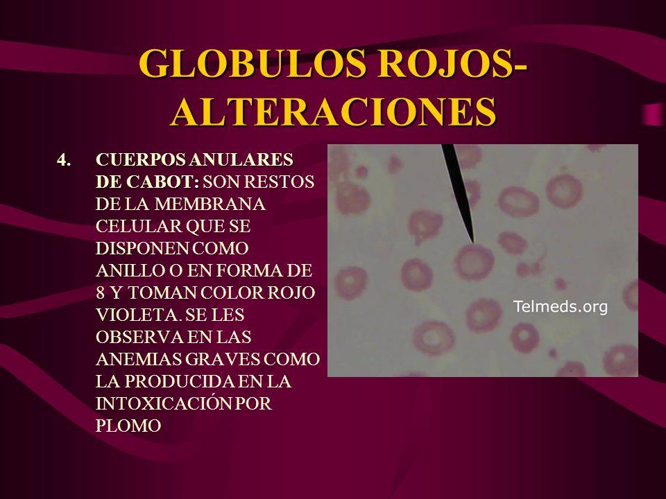 GLOBULOS ROJOS-ALTERACIONES