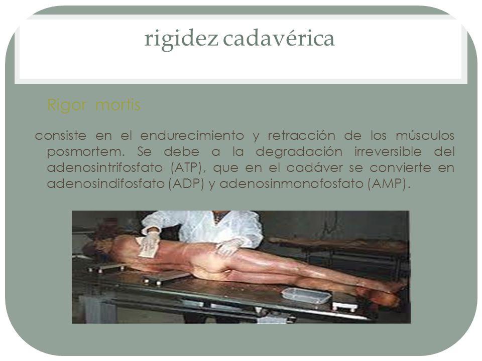 rigidez cadavérica Rigor mortis