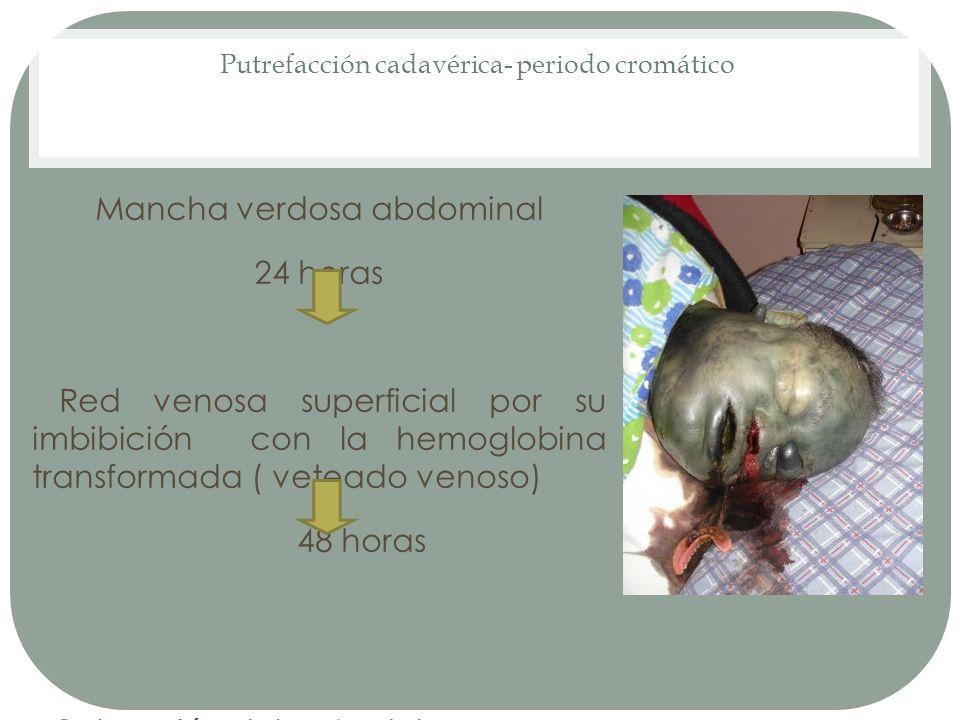 Putrefacción cadavérica- periodo cromático