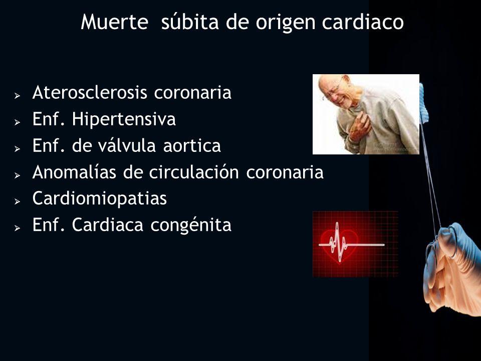 Muerte súbita de origen cardiaco