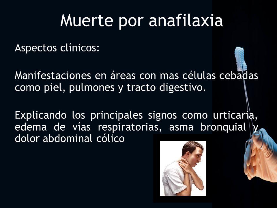 Muerte por anafilaxia Aspectos clínicos: