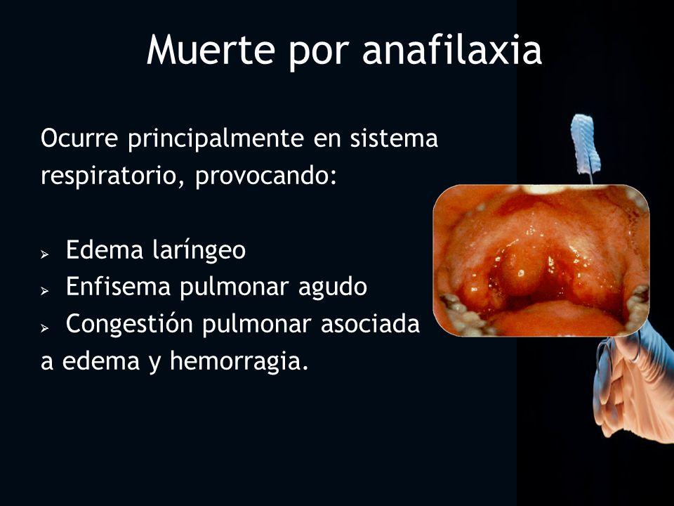 Muerte por anafilaxia Ocurre principalmente en sistema
