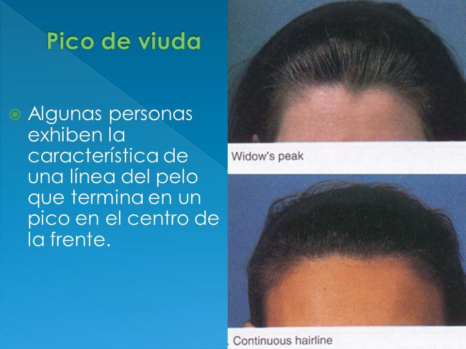 Pico de viudaAlgunas personas exhiben la característica de una línea del pelo que termina en un pico en el centro de la frente.