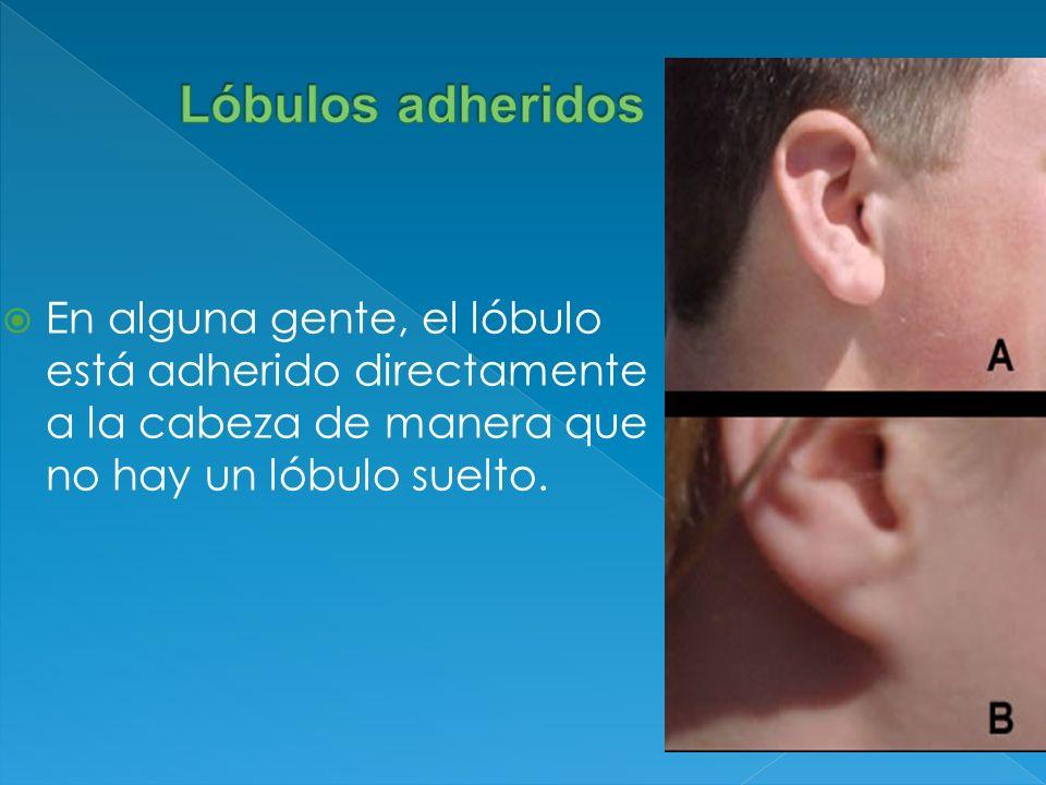 Lóbulos adheridos En alguna gente, el lóbulo está adherido directamente a la cabeza de manera que no hay un lóbulo suelto.