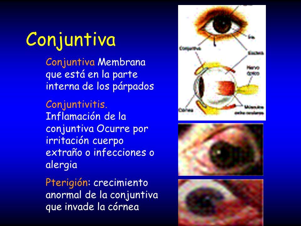 Conjuntiva Conjuntiva Membrana que está en la parte interna de los párpados.