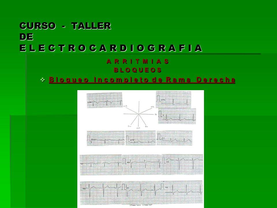CURSO - TALLER DE E L E C T R O C A R D I O G R A F I A