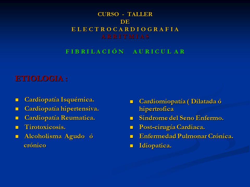 ETIOLOGIA : Cardiopatía Isquémica.
