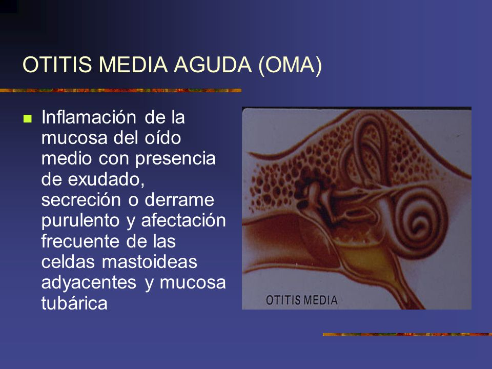 OTITIS MEDIA AGUDA (OMA)