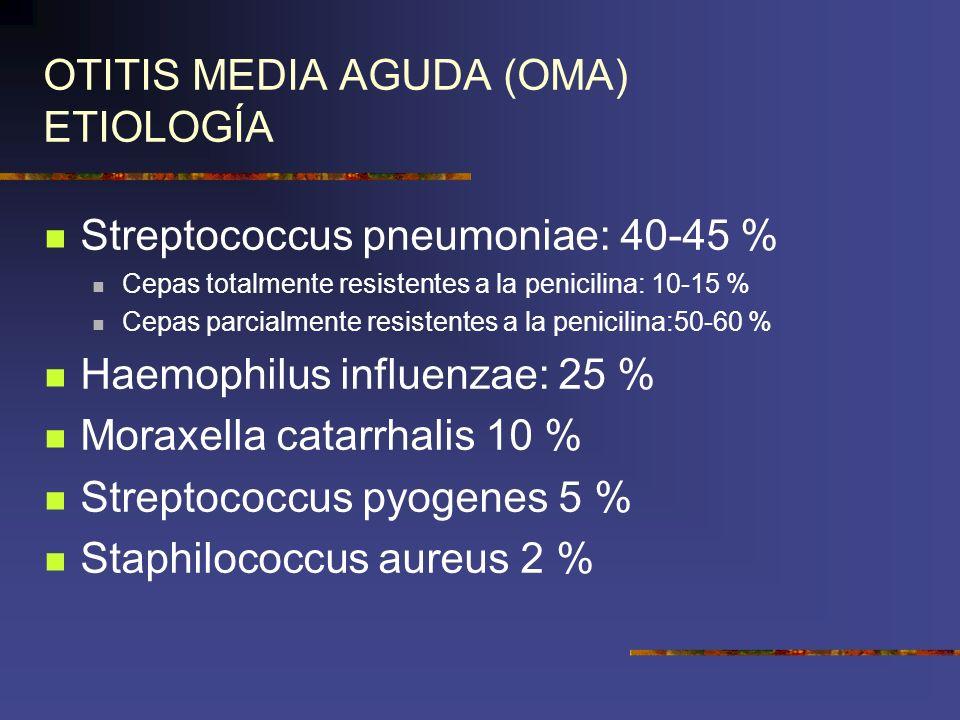 OTITIS MEDIA AGUDA (OMA) ETIOLOGÍA