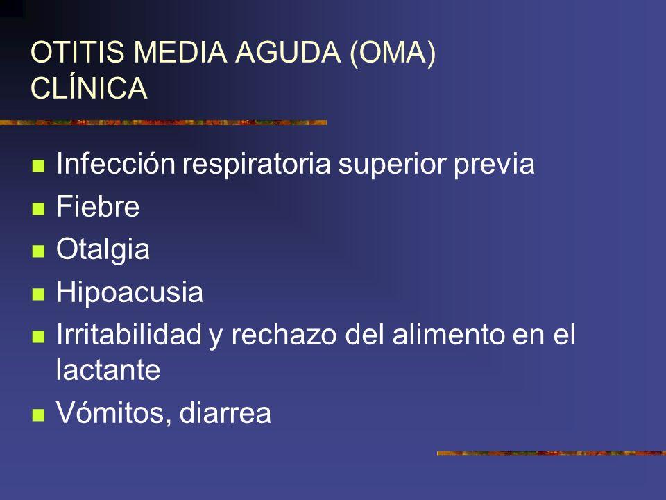 OTITIS MEDIA AGUDA (OMA) CLÍNICA