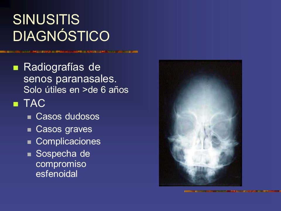 SINUSITIS DIAGNÓSTICO