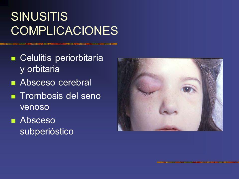 SINUSITIS COMPLICACIONES