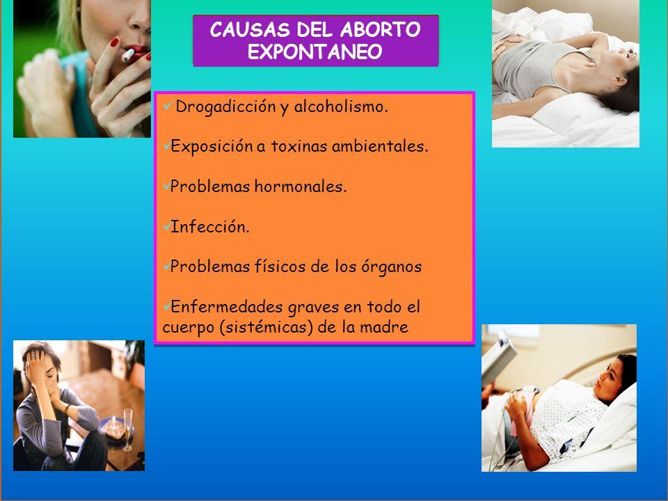 CAUSAS DEL ABORTO EXPONTANEO