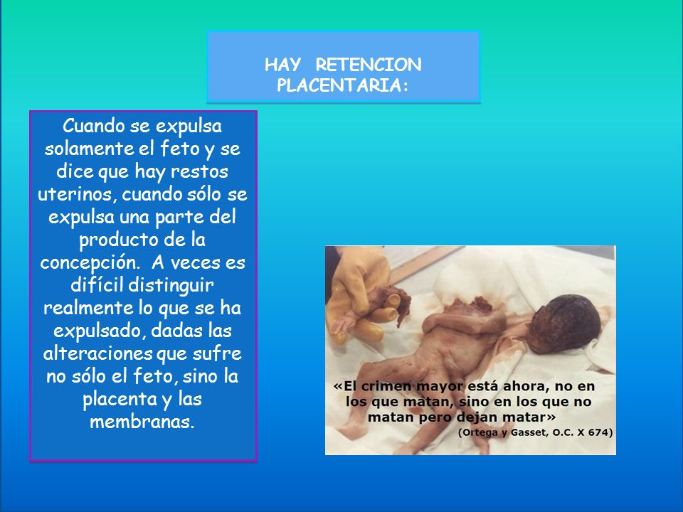 HAY RETENCION PLACENTARIA: