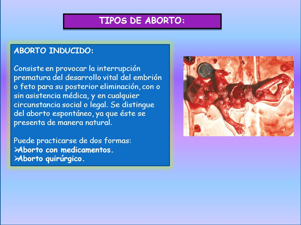 TIPOS DE ABORTO: