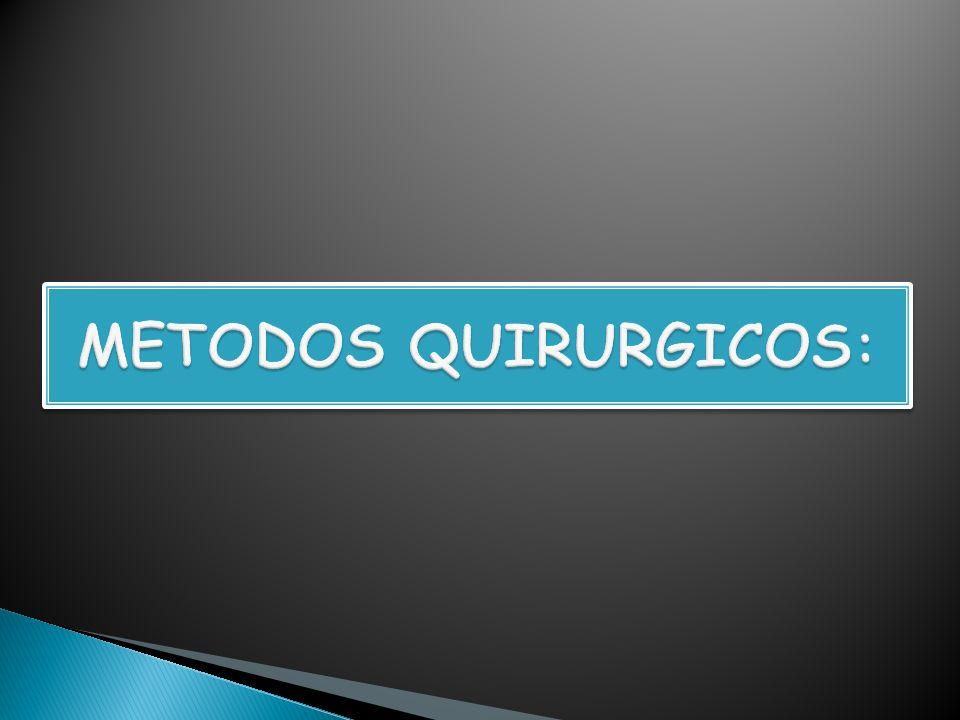 METODOS QUIRURGICOS: