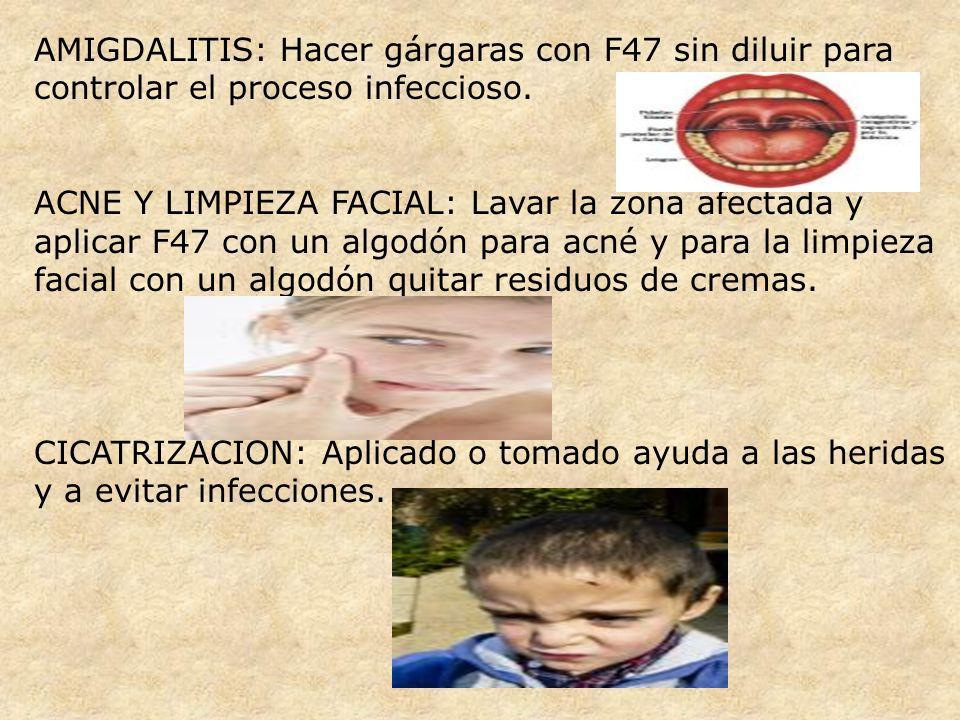 AMIGDALITIS: Hacer gárgaras con F47 sin diluir para controlar el proceso infeccioso.