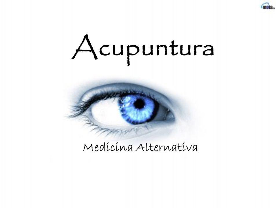 Acupuntura Medicina Alternativa