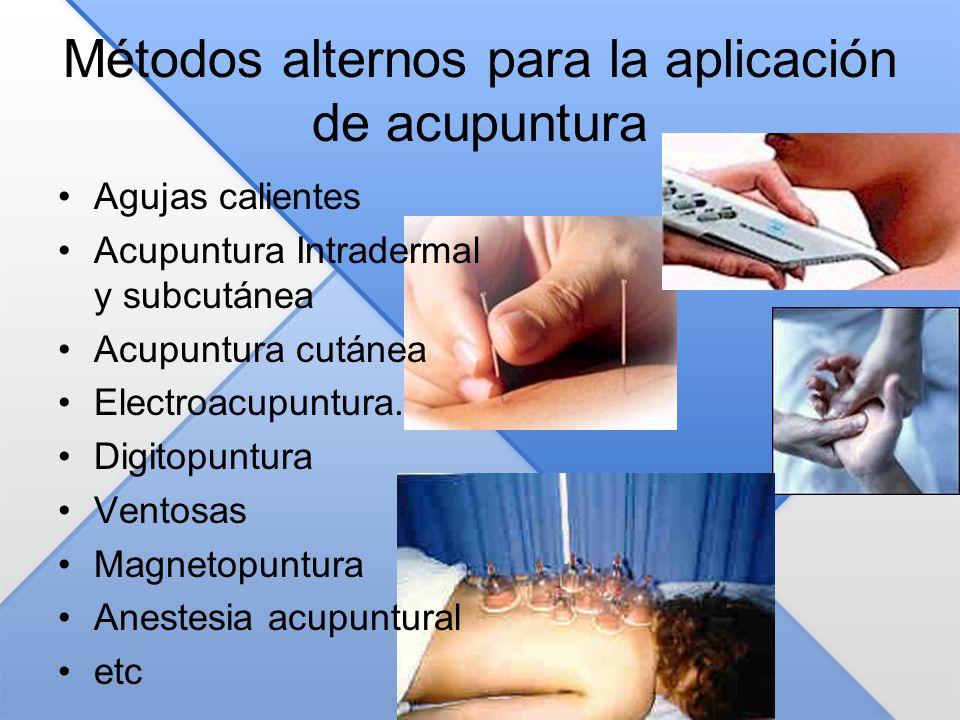 Métodos alternos para la aplicación de acupuntura