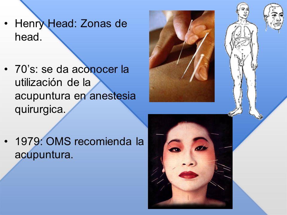 Henry Head: Zonas de head.